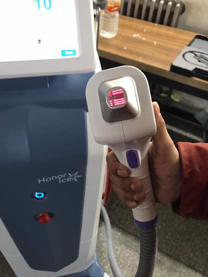 Лазерный эпилятор гибридный